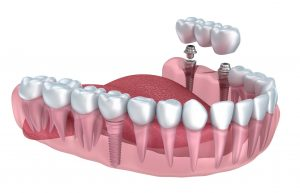 dental-bridge2