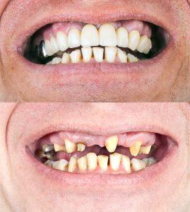 ครอบฟัน โดยทันตแพทย์เฉพาะทาง คลินิกทันตกรรมโลตัสสกายเทรน