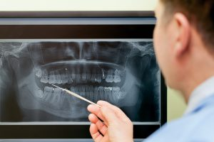 dental-xray6